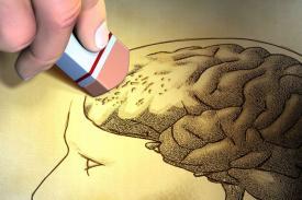 Alzheimer, Penyakit Pikun yang Mematikan